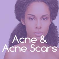 Dallas Acne Scar Treatments