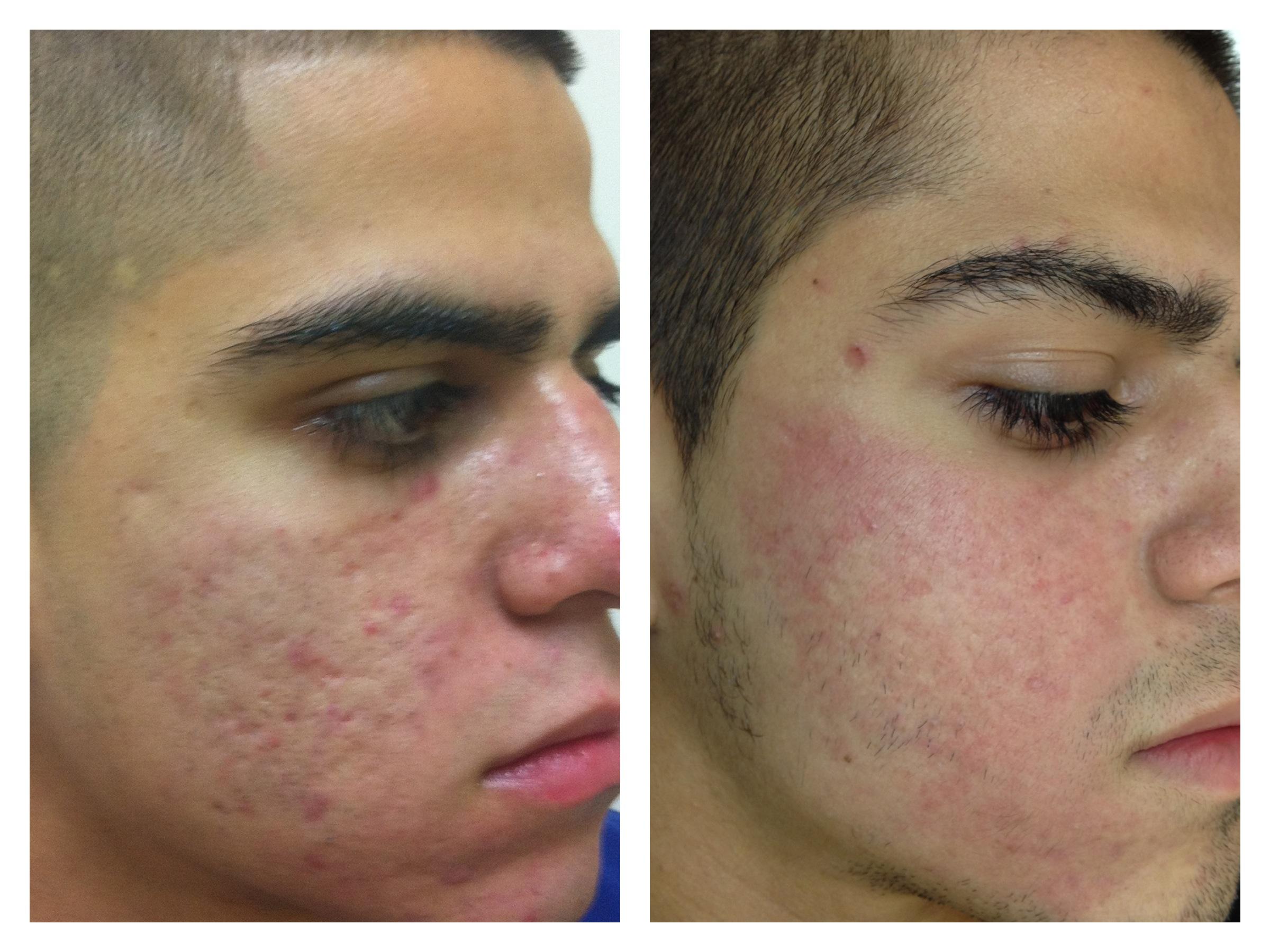Co2 laser facial resurfacing