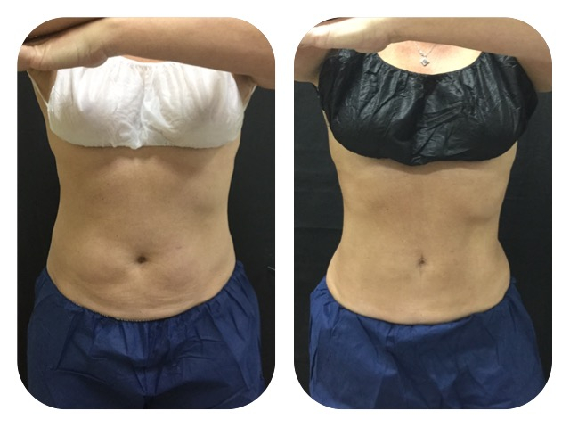 Best Coolsculpting In Dallas At Advanced Skin Fitness