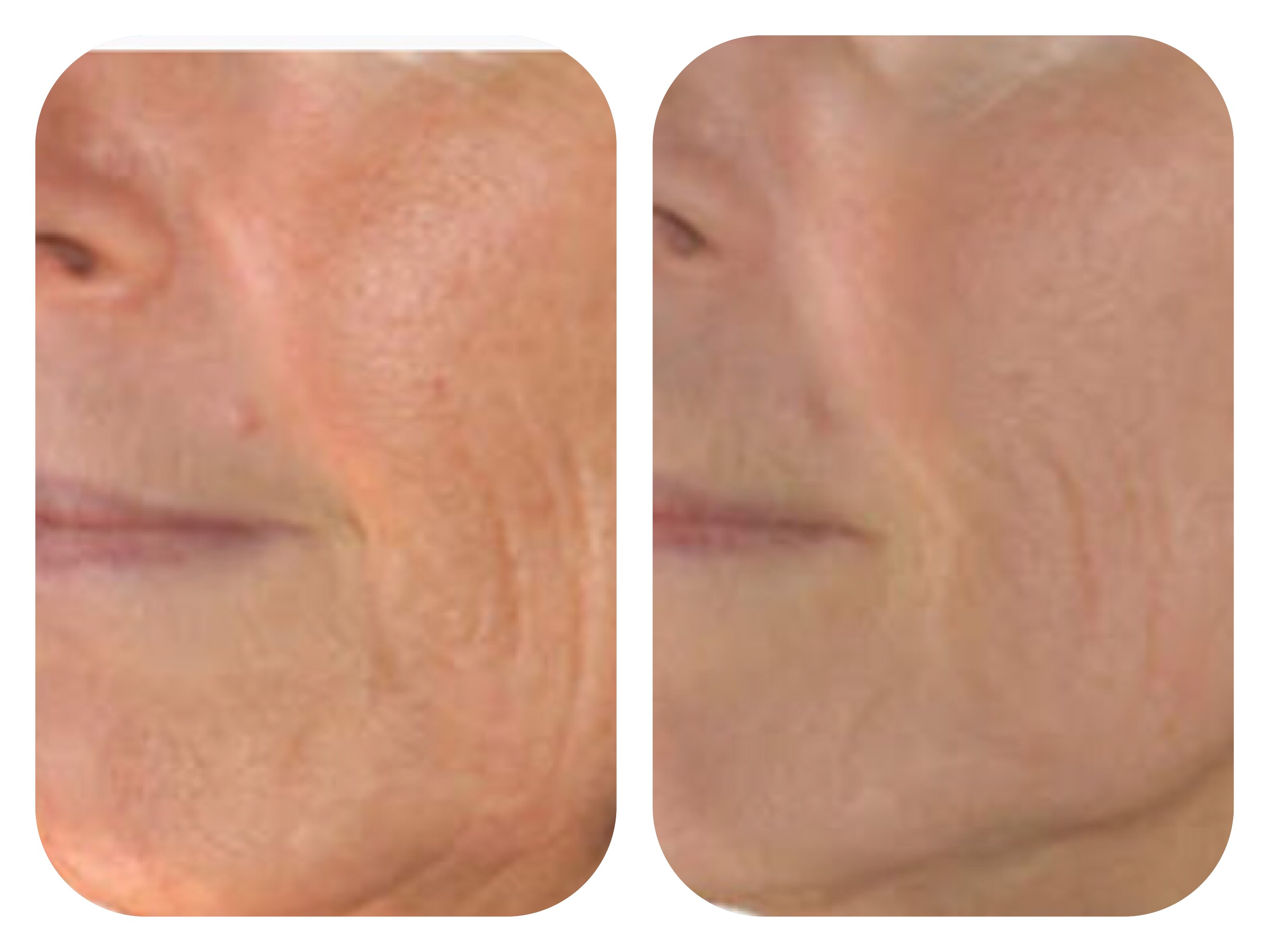 rf treatment before and after