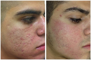 Best Acne And Scar Treatments In Dallas At Advanced Skin Fitness