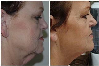 vShape Skin Tightening - Advanced Skin Fitness Dallas