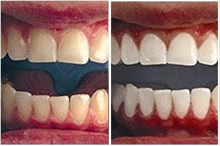 Best Teeth Whitening In Dallas At Advanced Skin Fitness Medspa