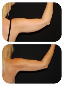 Emsculpt + CoolSculpt combo treatment for arms before and after
