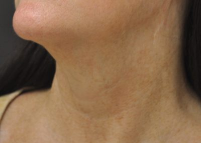 Dallas-Exilis_Ultra_PIC_007-After-neck-female-Jason-Lupton-MD