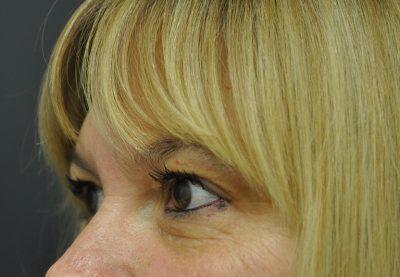 Dallas-Exilis_Ultra_PIC_009-Before-eyes-female-Jason-Lupton-MD