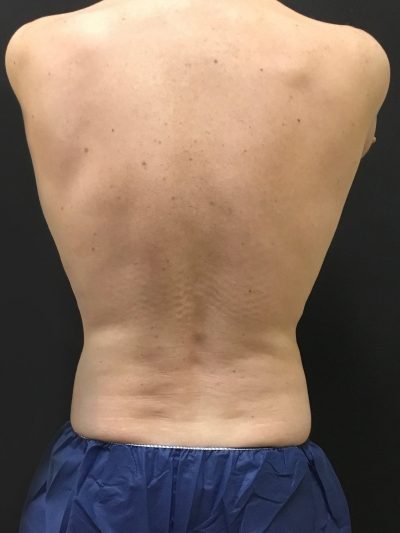 coolsculpting flanks after